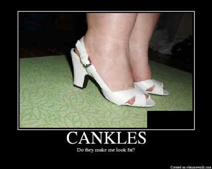CANKLES.jpg (69549 bytes)