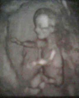 ultrasound.jpg (28874 bytes)